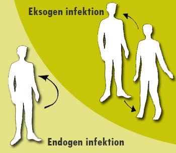 Tegning af eksogen og endogen infektion